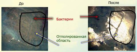 Зубы, Бактерии, Шлифовка