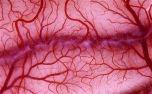Искусственные кровеносные сосуды