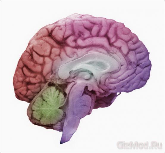 От электронного мозжечка — к искусственному мозгу
