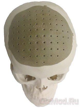 Кости черепа напечатали на 3D-принтере