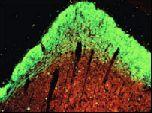 Восстановление нервных клеток возможно