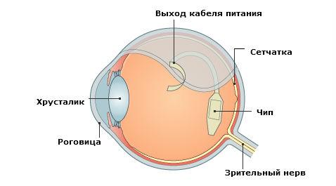 Retina Implant, Чип, Имплантант