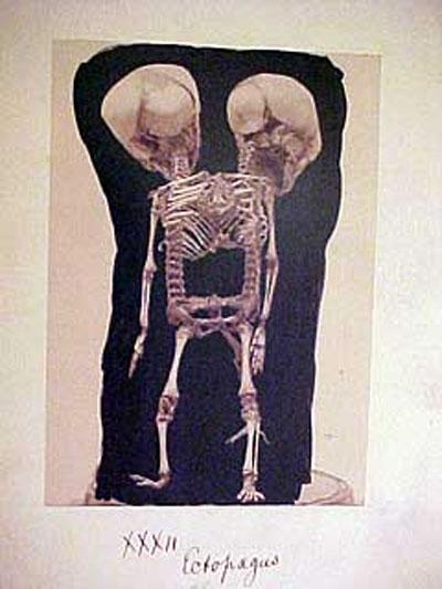 Экспонаты музея медицинской истории в Филадельфии