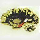 В мозге обнаружен источник дежа вю