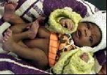 В ЮАР родилась девочка с четырьмя ногами