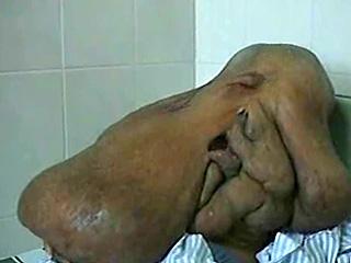 Китайские хирурги прооперировали «человека-слона»