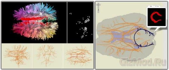 Навигационная карта мозга
