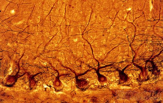Как мозжечок фильтрует сенсорную информацию?