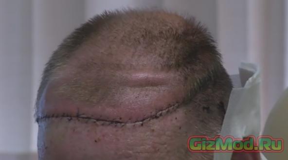 В США пациенту пересадили пол головы