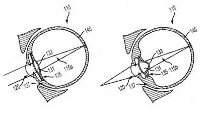 Google получала патент на новое смарт-устройство для глаза